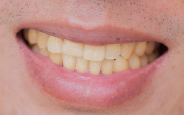 10 Easy And Effective Home Remedies For Whiter Teeth_1