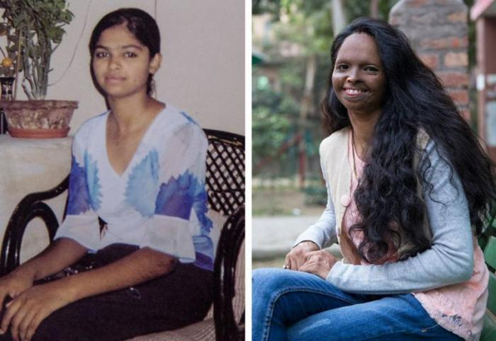 Success Story - Laxmi Agarwal Motivating Acid Attack Victims Relentlessly__Early Life